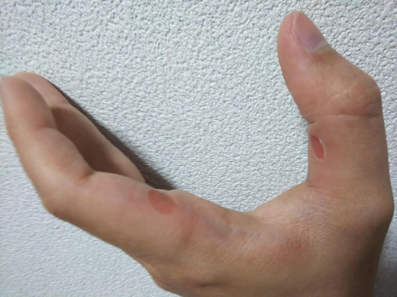 剥ける 指先 の 皮