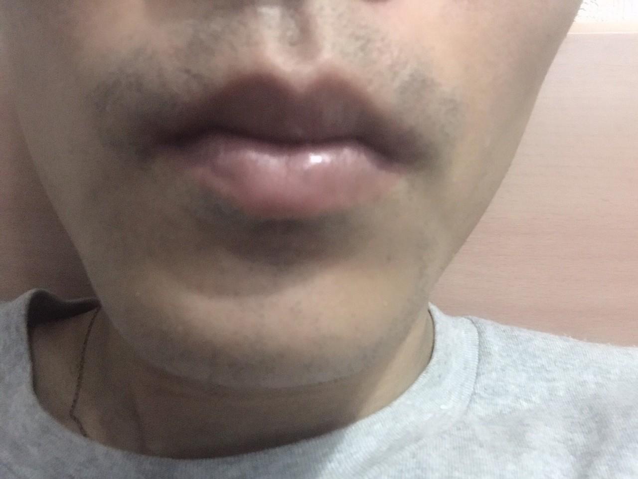 ヒゲ脱毛一回目~一か月後、髭剃り一日後