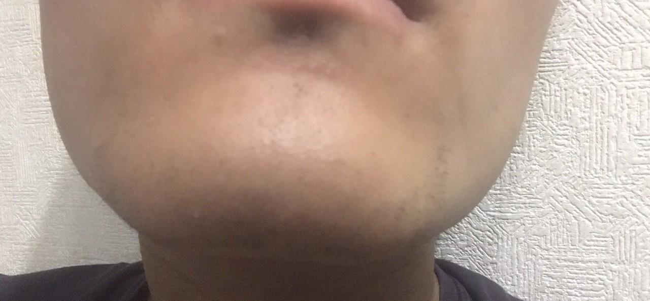 ヒゲ脱毛二回目~三週間後、髭剃り一日後2