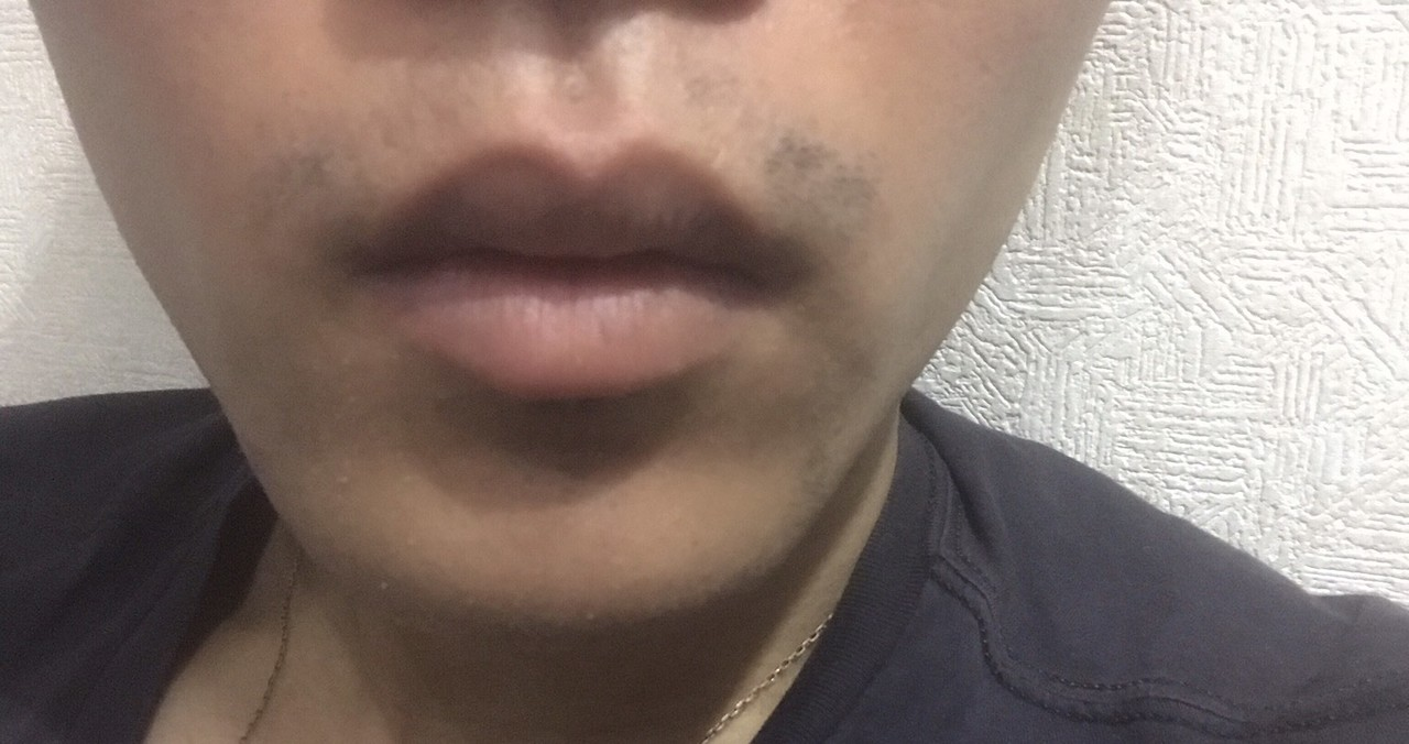 ヒゲ脱毛二回目~三週間後、髭剃り一日後