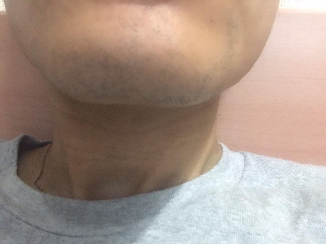 ヒゲ脱毛一回目~一か月後、髭剃り一日後2