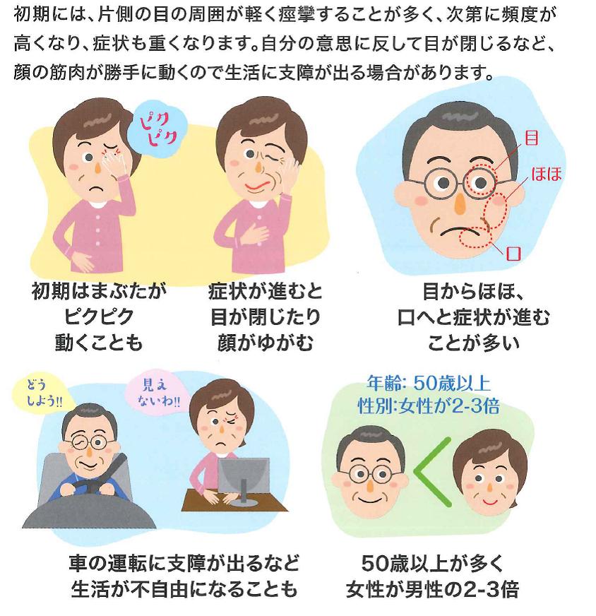 目 ピクピク 原因 ピクピクと目が痙攣するのは何が原因?目の痙攣が示す病気