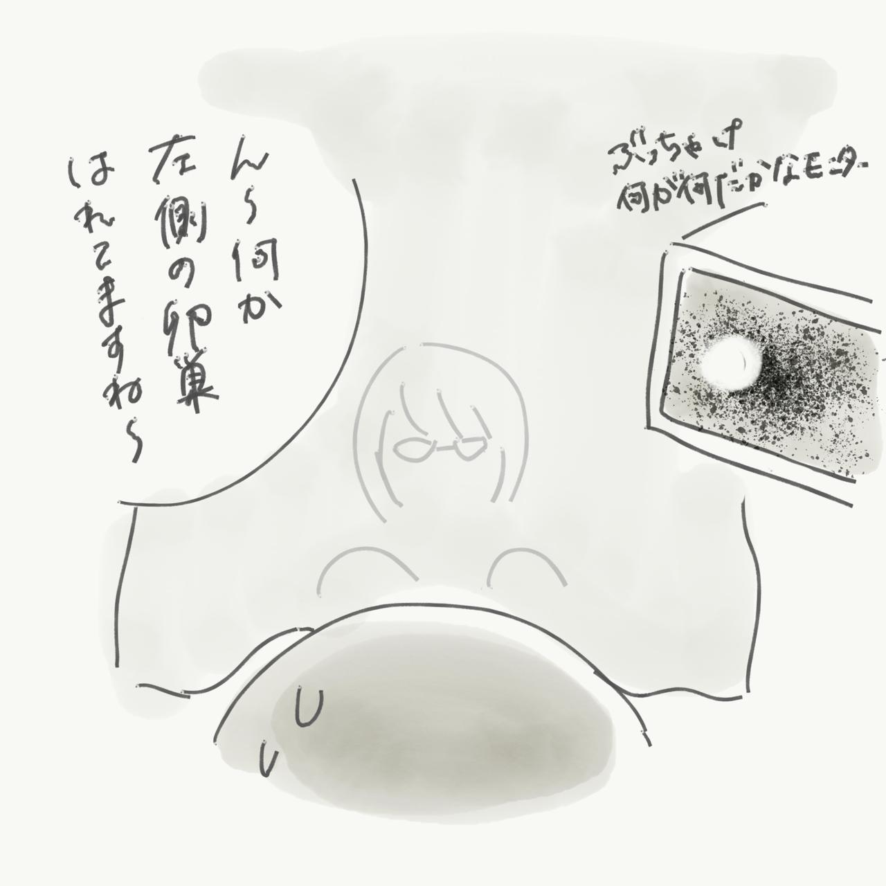 う 卵巣 腫 の